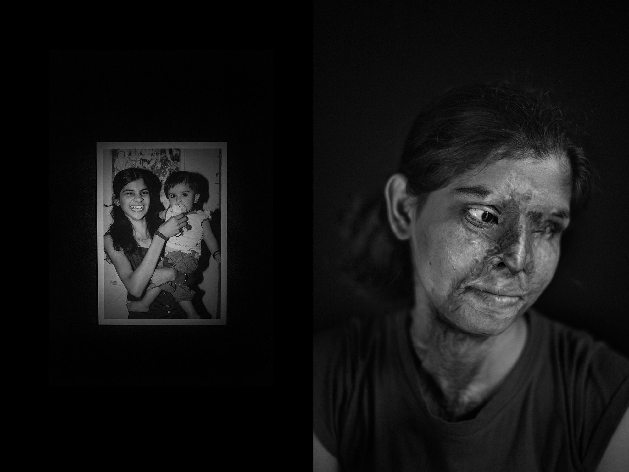 Portraits from the Acid attack survivors in India. Foto: Jordi Pizarro, Spain, Shortlist, Conceptual, Professional, 2015 Sony World Photography Awards