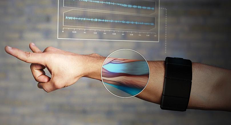 Myo-sensoren fungerer ved å registrere de elektriske signalene som sendes til musklene.