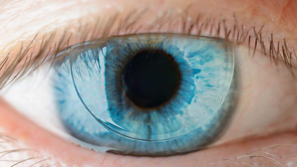Ny type kontaktlinse kan zoome inn- og ut