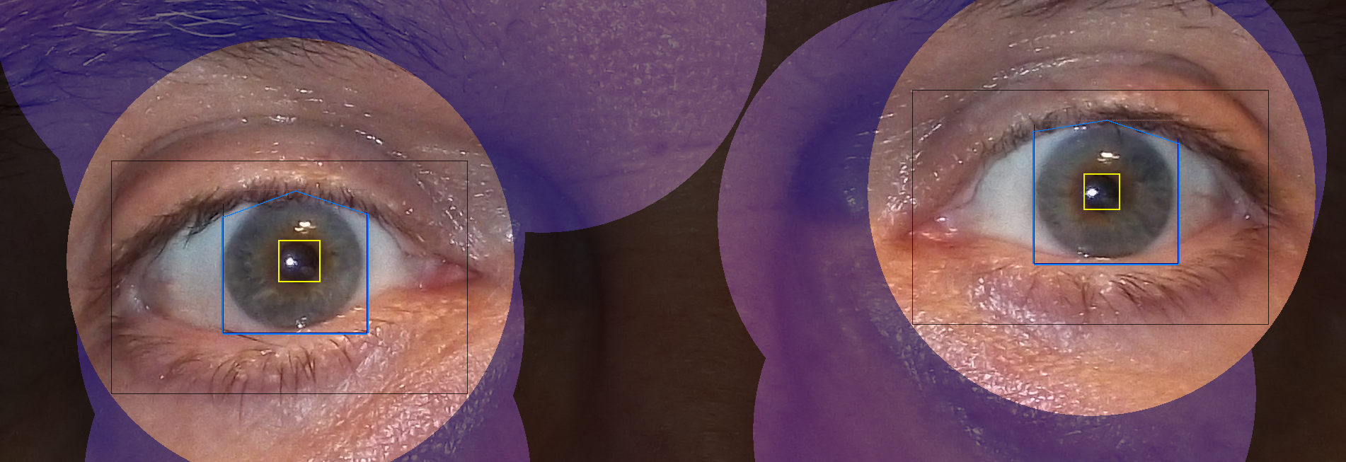 Kameraet måler blant annet lysbrytingen i øyets ytre linse og størrelsen på pupillene.