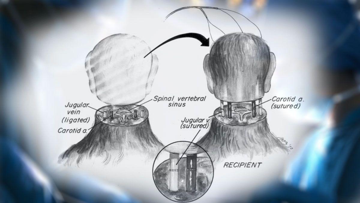 Russer har meldt seg frivillig til verdens første hode-transplantasjon