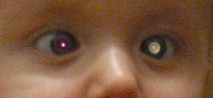Retinoblastom hos barn.Foto: Wikimedia Commons