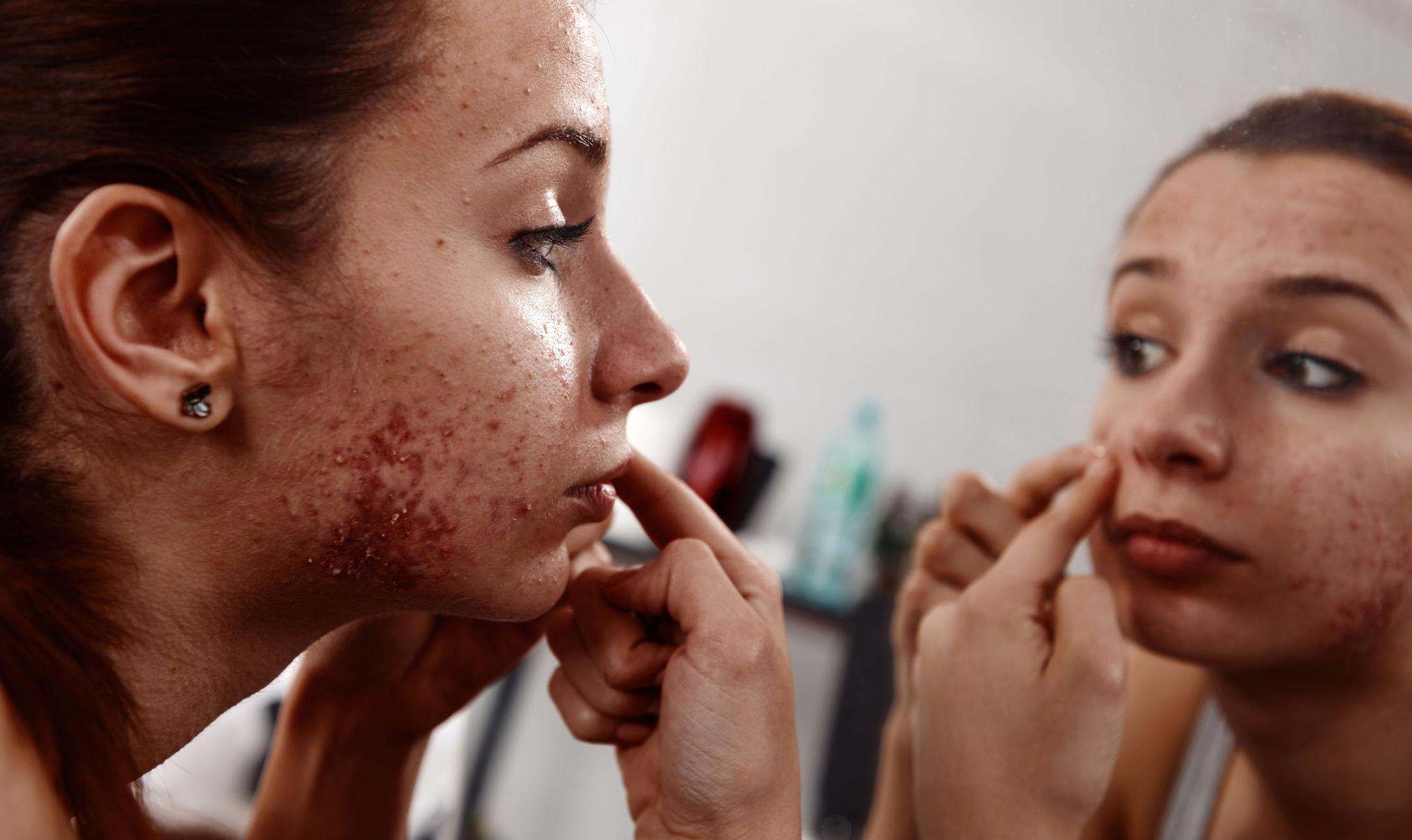Dette skjer når det blir kaldt: Derfor klør huden din