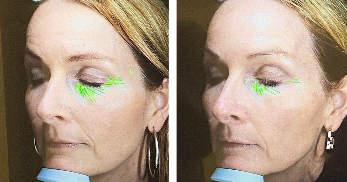 OVERRASKET: Heidi ble svært positivt overrasket over resultatene av hudskanningen. Lysegrønn farge er kun tørrhetslinjer, mens de mørkegrønne viser rynker. Her ses forskjellen fra 2019 til 2020.