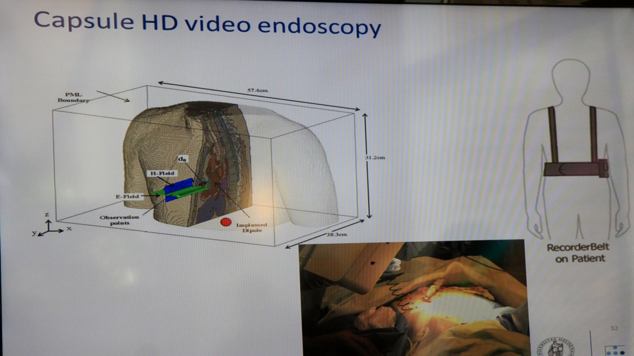 Ved å svelge et lite pillekamera kan pasienten unngå ubehagelige undersøkelser.